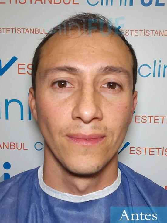 Andres 37 Barcelona injerto capilar turquia dia operacion antes