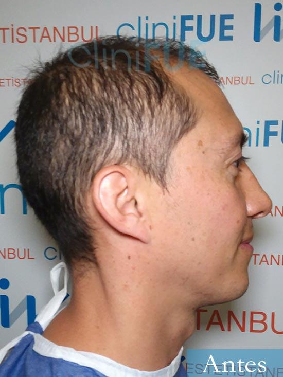 Andres 37 Barcelona injerto capilar turquia dia operacion antes 3