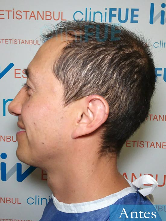 Andres 37 Barcelona injerto capilar turquia dia operacion antes 4