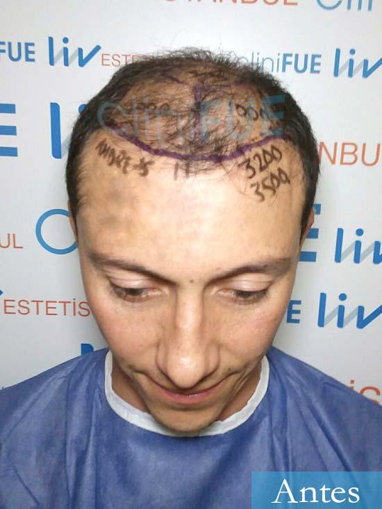 Andres 37 Barcelona injerto capilar turquia dia operacion antes 1