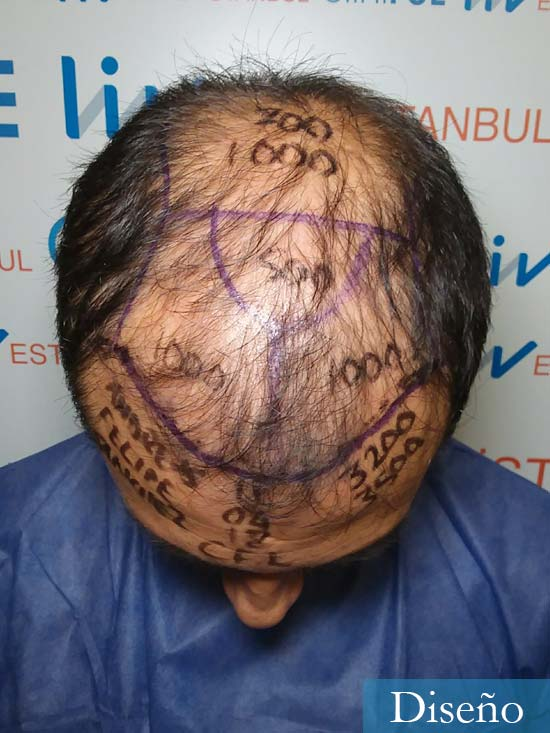 Andres 37 Barcelona injerto capilar turquia dia operacion antes 2