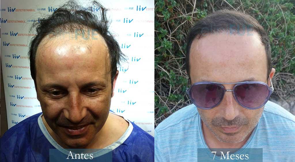 trasplante-capilar-victor-45-anos-castellon-clinifue