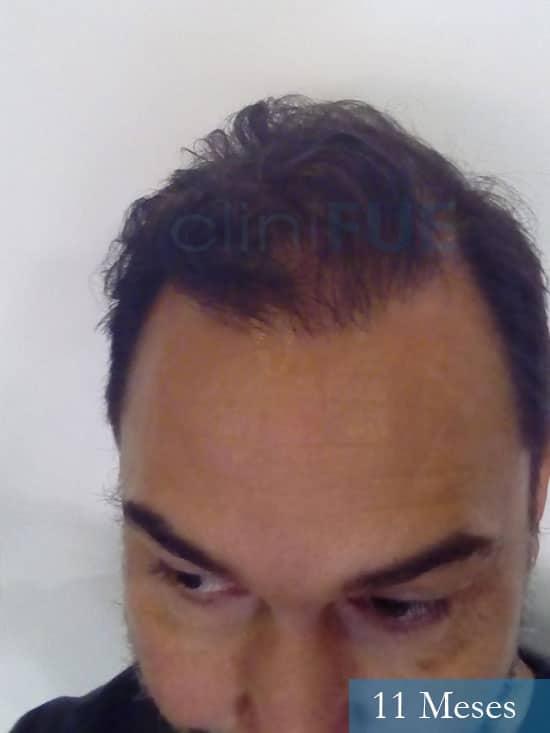 Antonio 42 Murcia trasplante capilar estambul 11 meses 2