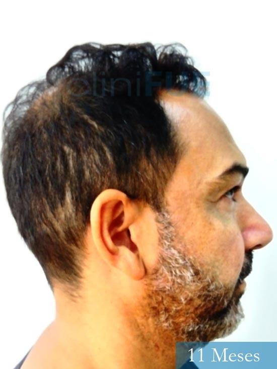 Antonio 42 Murcia trasplante capilar estambul 11 meses 4