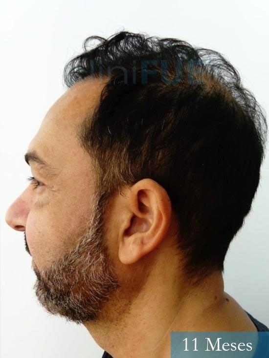 Antonio 42 Murcia trasplante capilar estambul 11 meses 5