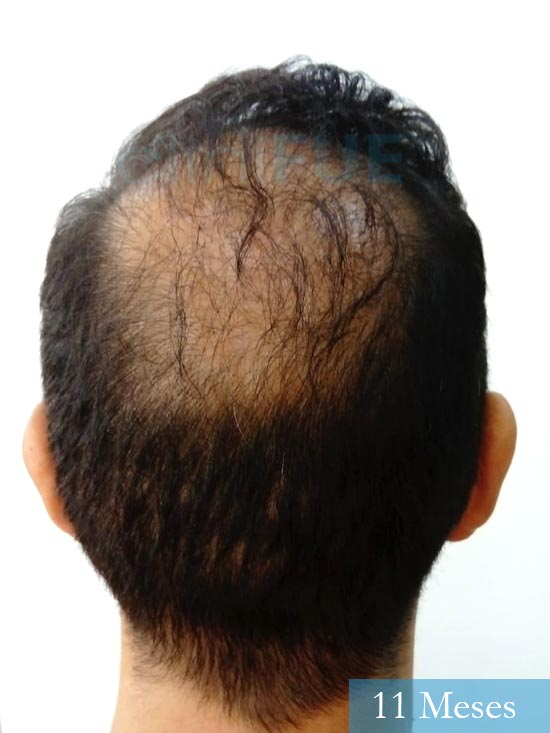 Antonio 42 Murcia trasplante capilar estambul 11 meses 6