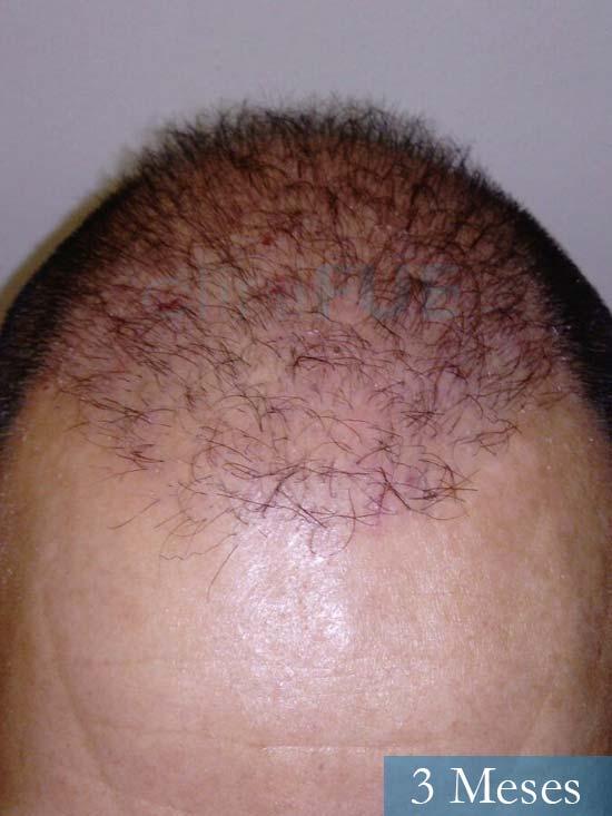 Antonio 42 Murcia trasplante capilar estambul 1 mes 2