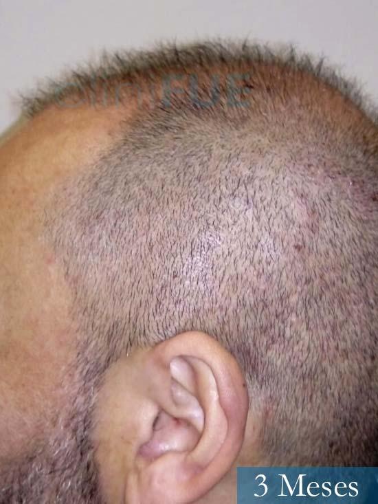 Antonio 42 Murcia trasplante capilar estambul 1 mes 3