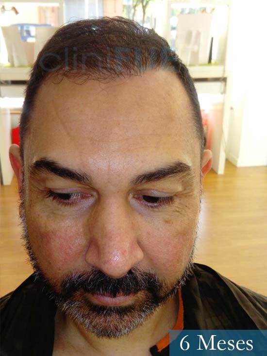Antonio 42 Murcia trasplante capilar estambul 6 meses