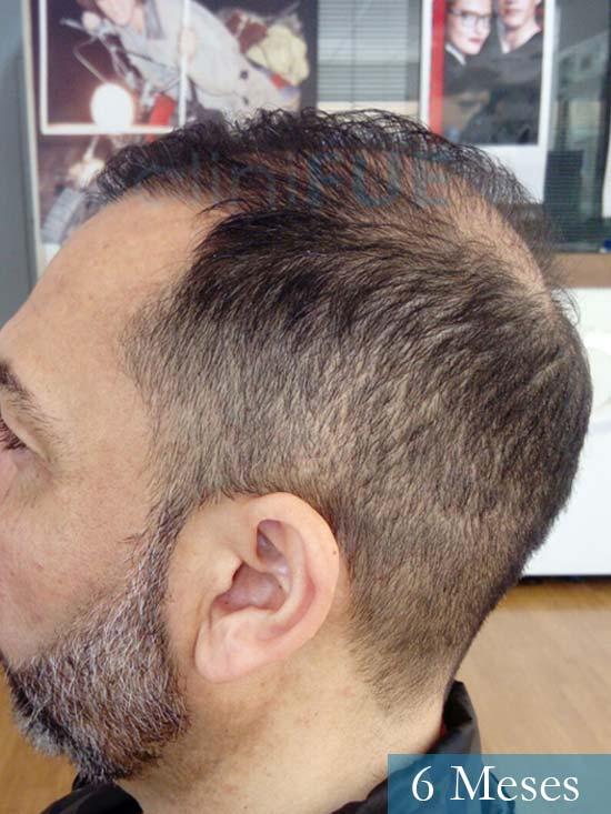 Antonio 42 Murcia trasplante capilar estambul 6 meses 4