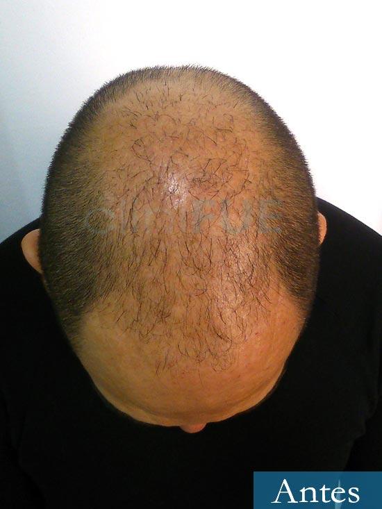 Antonio 42 Murcia trasplante capilar estambul antes 2