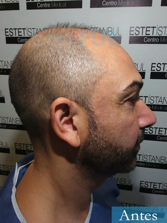 Antonio 42 Murcia trasplante capilar estambul antes 3