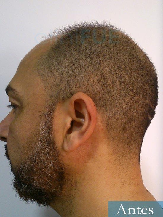 Antonio 42 Murcia trasplante capilar estambul antes 4