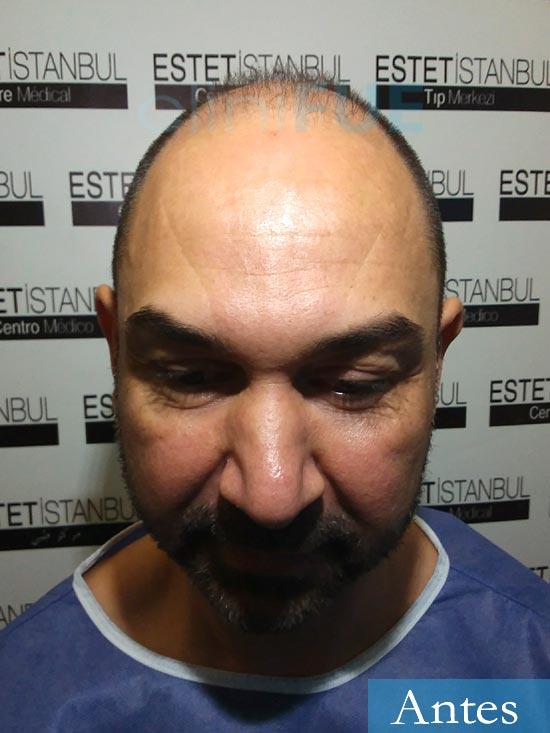 Antonio 42 Murcia trasplante capilar estambul antes