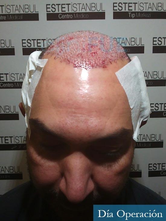 Antonio 42 Murcia trasplante capilar estambul dia operacion