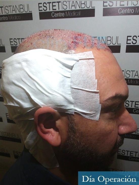 Antonio 42 Murcia trasplante capilar estambul dia operacion 3