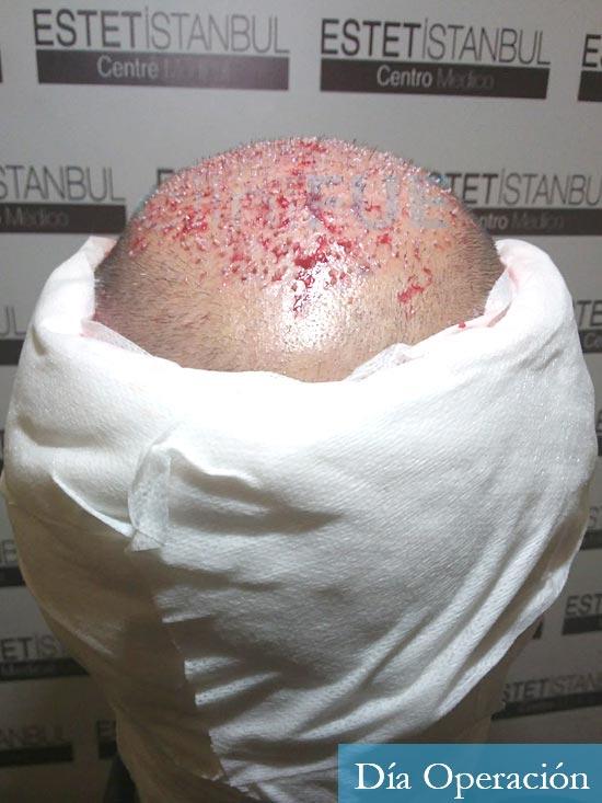 Antonio 42 Murcia trasplante capilar estambul dia operacion 5