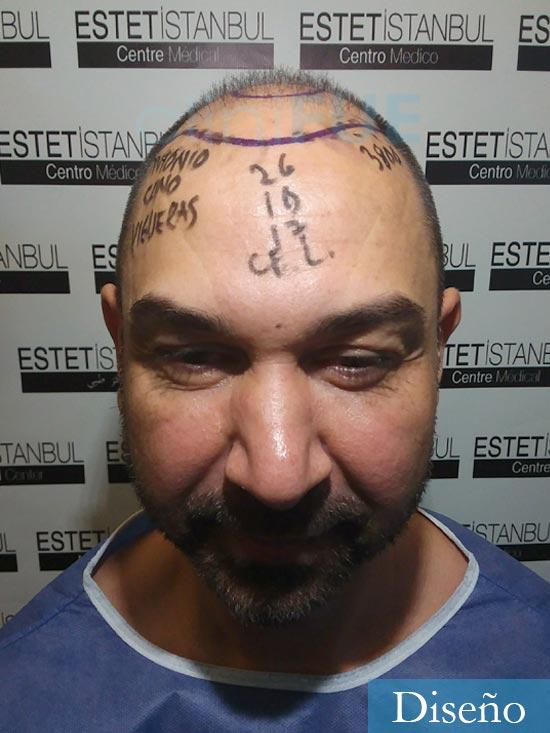 Antonio 42 Murcia trasplante capilar estambul dia operacion diseno