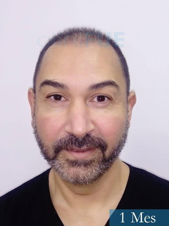Antonio 42 Murcia trasplante capilar estambul segunda operacion 1 mes