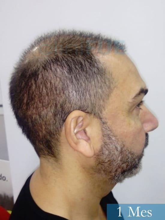 Antonio 42 Murcia trasplante capilar estambul segunda operacion 1 mes 3