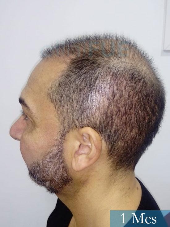 Antonio 42 Murcia trasplante capilar estambul segunda operacion 1 mes 4