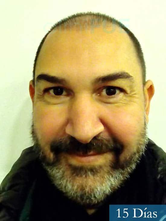 Antonio 42 Murcia trasplante capilar estambul segunda operacion 15 dias