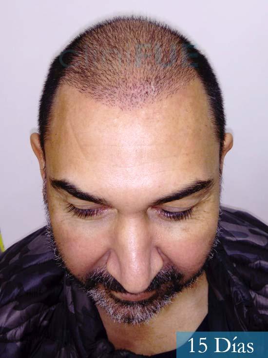 Antonio 42 Murcia trasplante capilar estambul segunda operacion 15 dias 2
