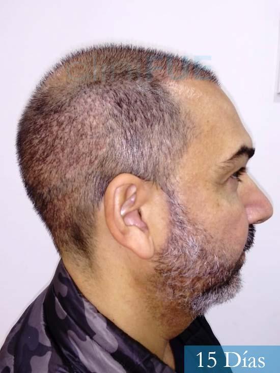 Antonio 42 Murcia trasplante capilar estambul segunda operacion 15 dias 4