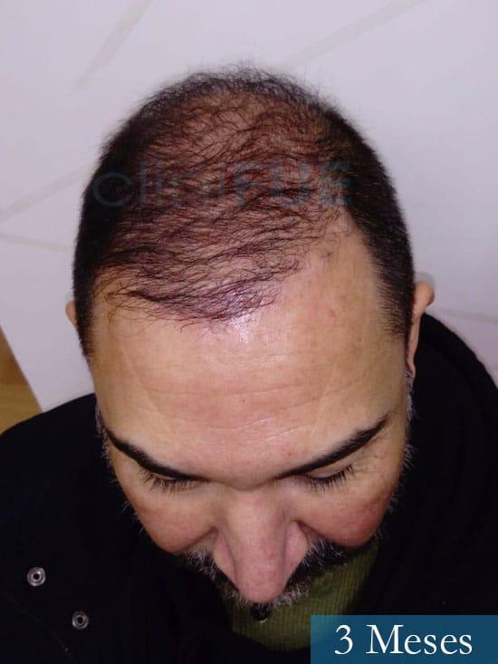 Antonio 42 Murcia trasplante capilar estambul segunda operacion 3 meses 2