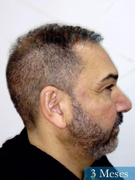 Antonio 42 Murcia trasplante capilar estambul segunda operacion 3 meses 3