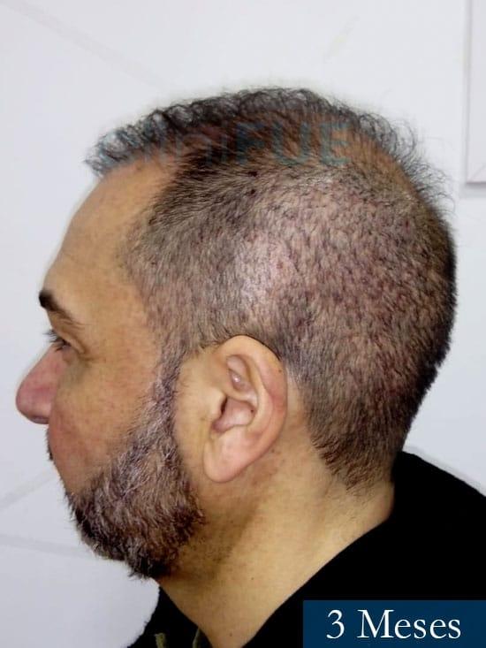 Antonio 42 Murcia trasplante capilar estambul segunda operacion 3 meses 4