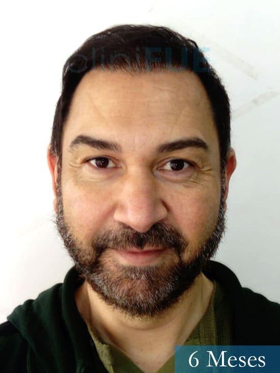 Antonio 42 Murcia trasplante capilar estambul segunda operacion 6 meses