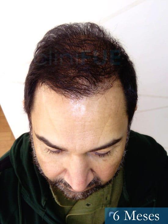 Antonio 42 Murcia trasplante capilar estambul segunda operacion 6 meses 2