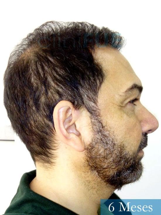 Antonio 42 Murcia trasplante capilar estambul segunda operacion 6 meses 3