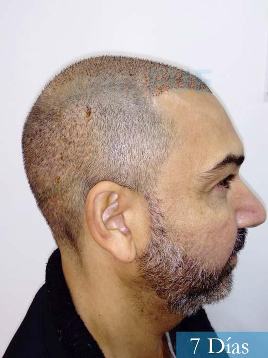 Antonio 42 Murcia trasplante capilar estambul segunda operacion 7 dias 4