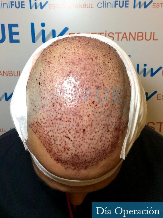 Antonio 42 Murcia trasplante capilar estambul segunda operacion dia operacion diseno 3