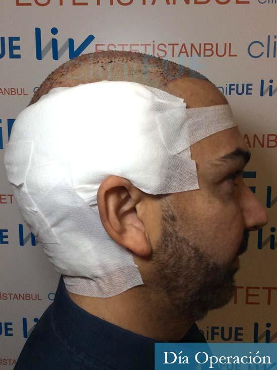Antonio 42 Murcia trasplante capilar estambul segunda operacion dia operacion 3