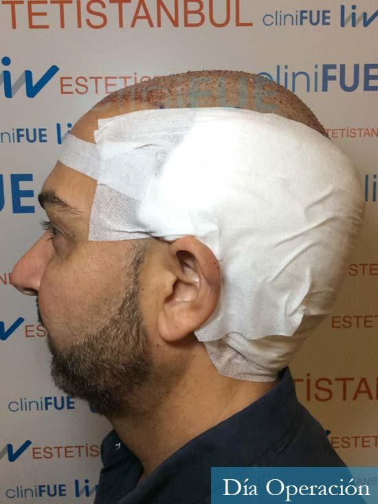 Antonio 42 Murcia trasplante capilar estambul segunda operacion dia operacion diseno 5