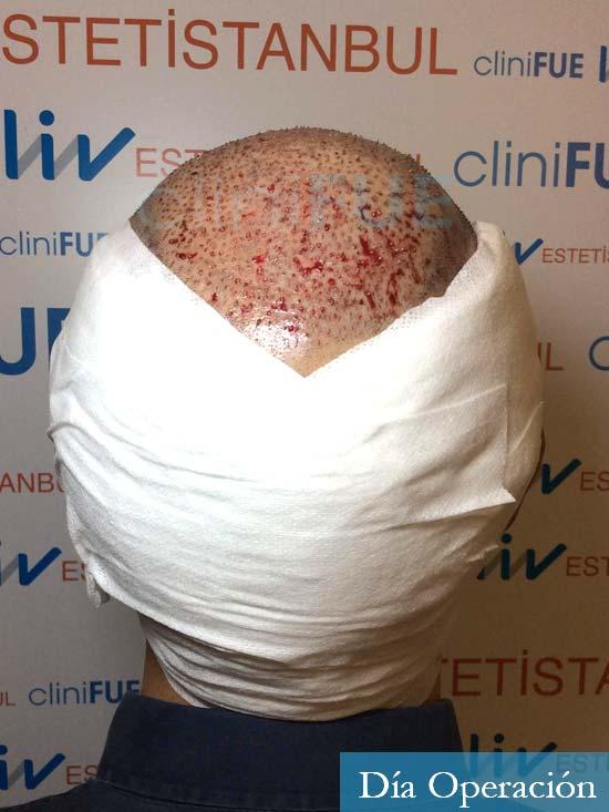 Antonio 42 Murcia trasplante capilar estambul segunda operacion dia operacion diseno 6