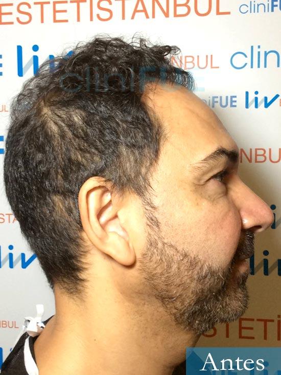 Antonio 42 Murcia trasplante capilar estambul segunda operacion dia operacion antes 3