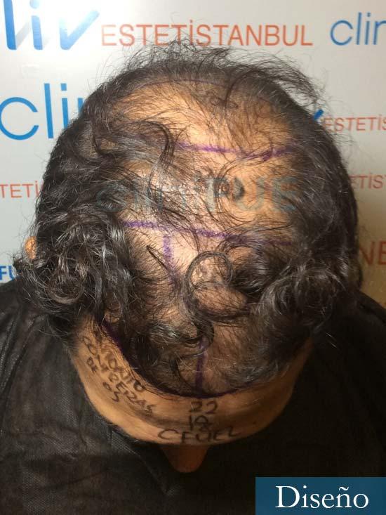 Antonio 42 Murcia trasplante capilar estambul segunda operacion dia operacion diseno 2