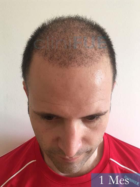 Carlos-34-Valencia-trasplante-capilar-turquia-1 mes