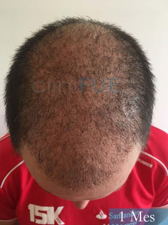 Carlos-34-Valencia-trasplante-capilar-turquia-1 mes 2