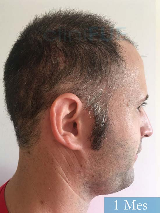 Carlos-34-Valencia-trasplante-capilar-turquia-1 mes 3