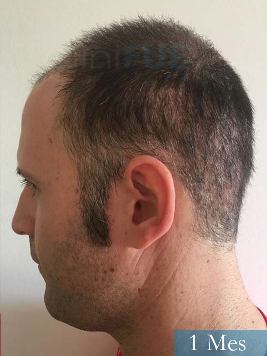 Carlos-34-Valencia-trasplante-capilar-turquia-1 mes 4