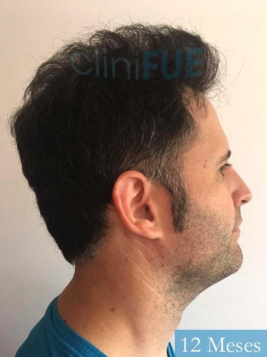 Carlos-34-Valencia-trasplante-capilar-turquia- 12 meses 3