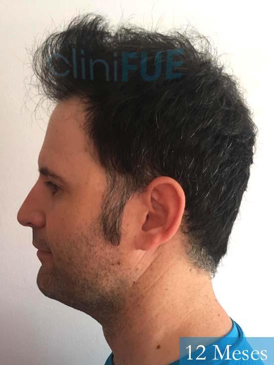 Carlos-34-Valencia-trasplante-capilar-turquia- 12 meses