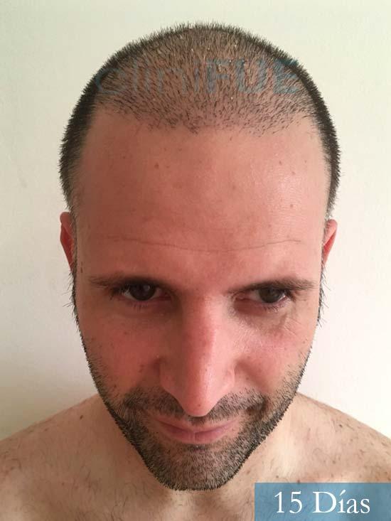 Carlos-34-Valencia-trasplante-capilar-turquia-15 dias