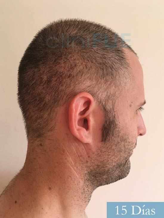 Carlos-34-Valencia-trasplante-capilar-turquia-15 dias 3