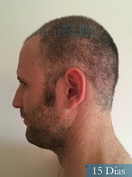 Carlos-34-Valencia-trasplante-capilar-turquia-15 dias 4